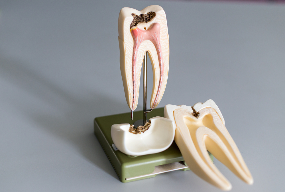 Tooth model for education in laboratory