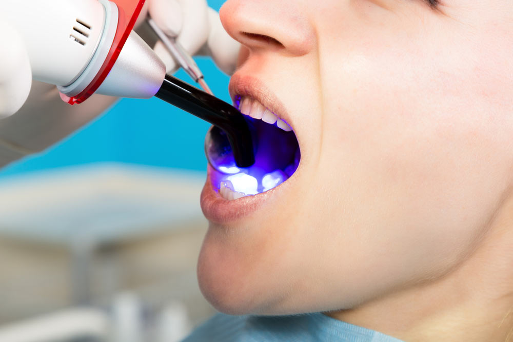 Doctor examines the oral cavity on tooth decay