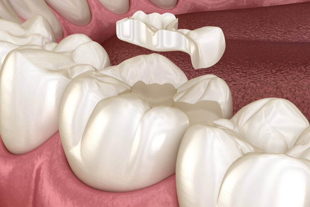 Inlay ceramic crown fixation over tooth