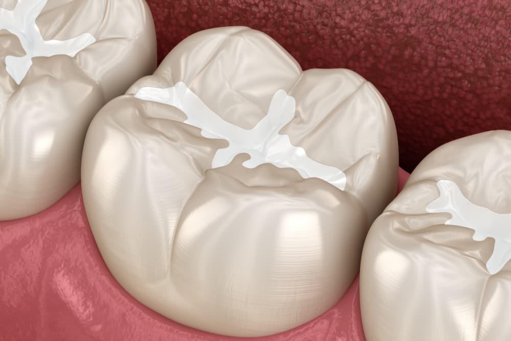 Molar Fissure dental fillings