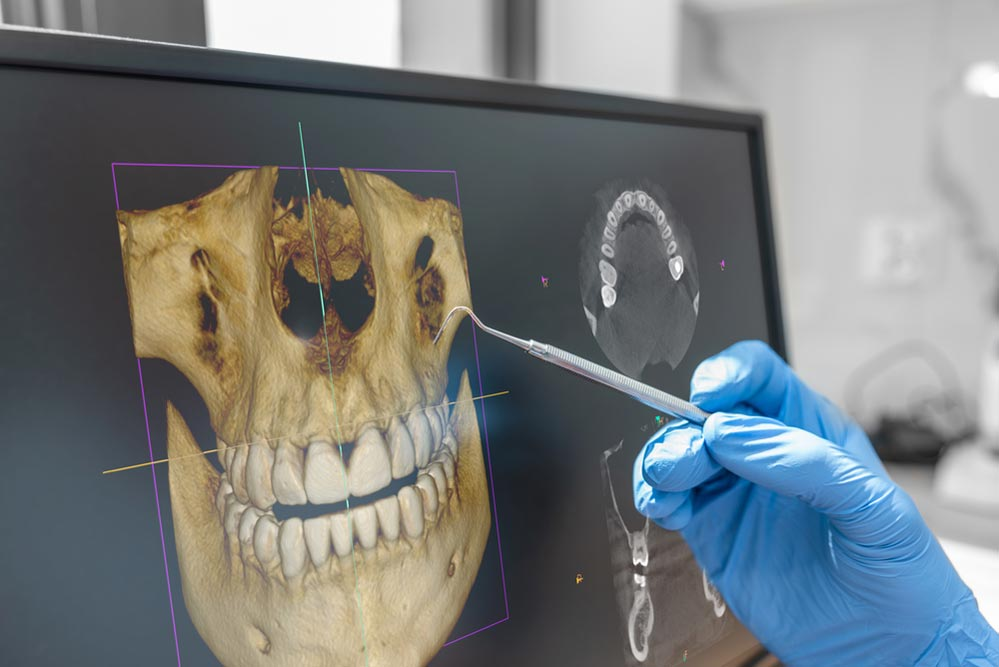 Dentist showing 3D tomography image on screen