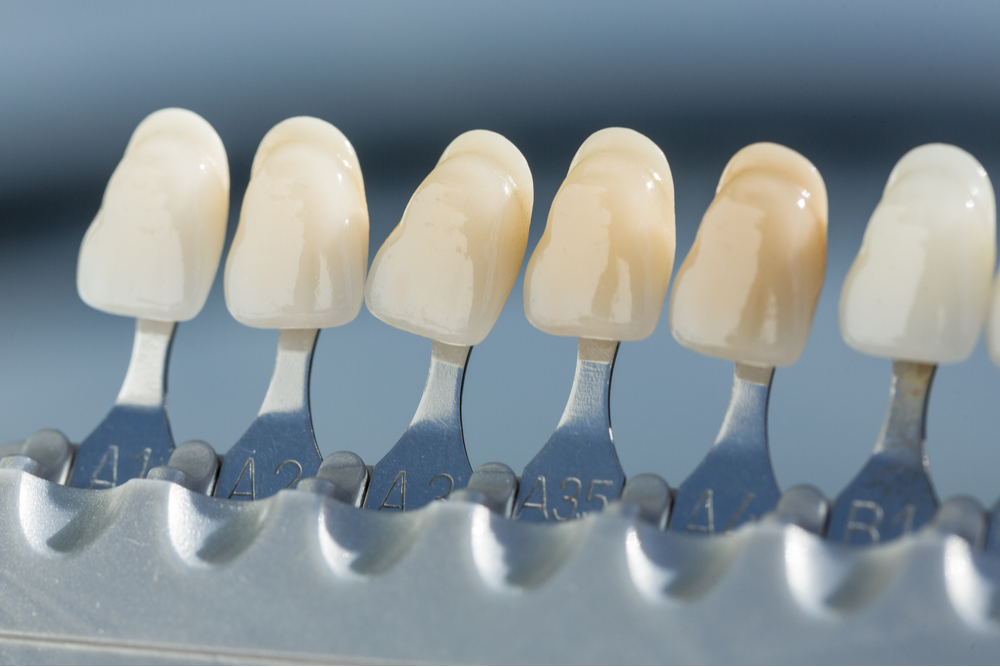 shade guide to check veneer of tooth crown
